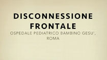 Disconnessione frontale